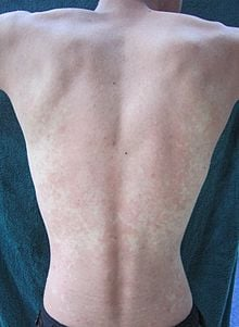 Person's back with red spots from drinking alcohol