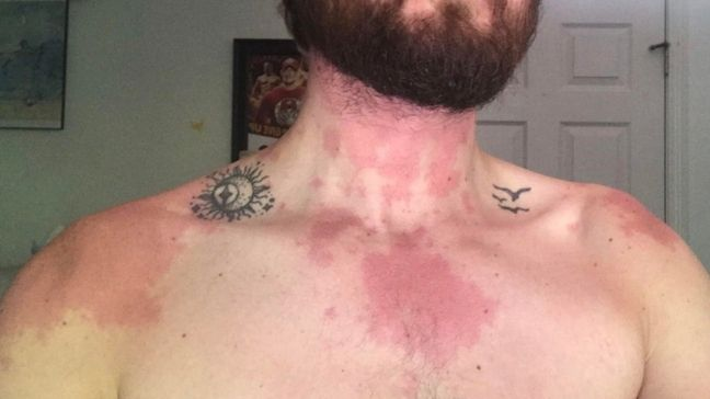 Alcohol Allergic Reaction